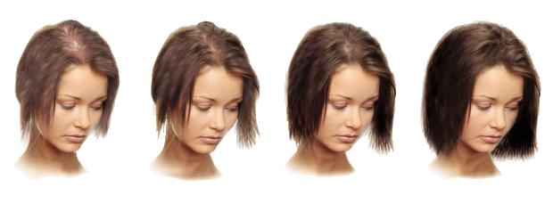 Что делать если после родов выпадают волосы