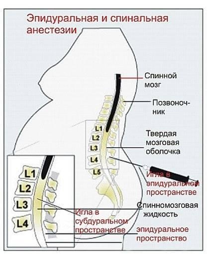 Кесарево сечение фото
