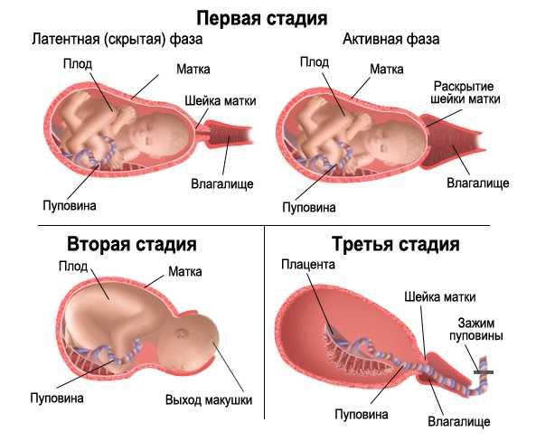 Почему во время беременности матка в тонусе