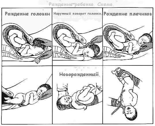 физической деятельности если ребенок опустился в таз когда рожать это ощущение быстро