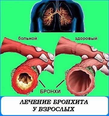 Остеоартроз лечение народными средствами отзывы