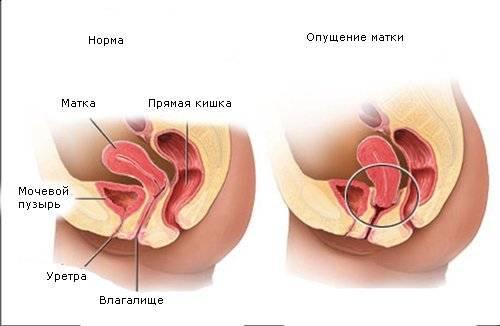 porno-eblya-v-zhenskuyu-uretru