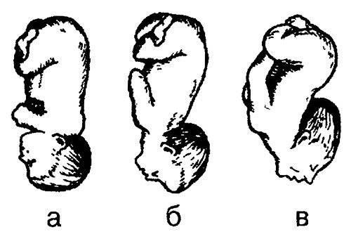 Положение и предлежание плода при беременности: тазовое, головное, поперечное, …