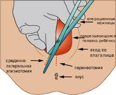 зашивают влагалище после родов видео