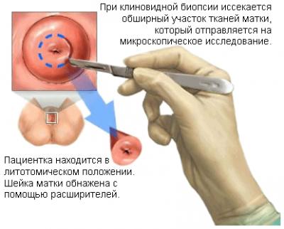Можно ли заниматься сексом после биопсии